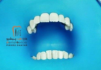 استفاده از رابردم در دندانپزشکی