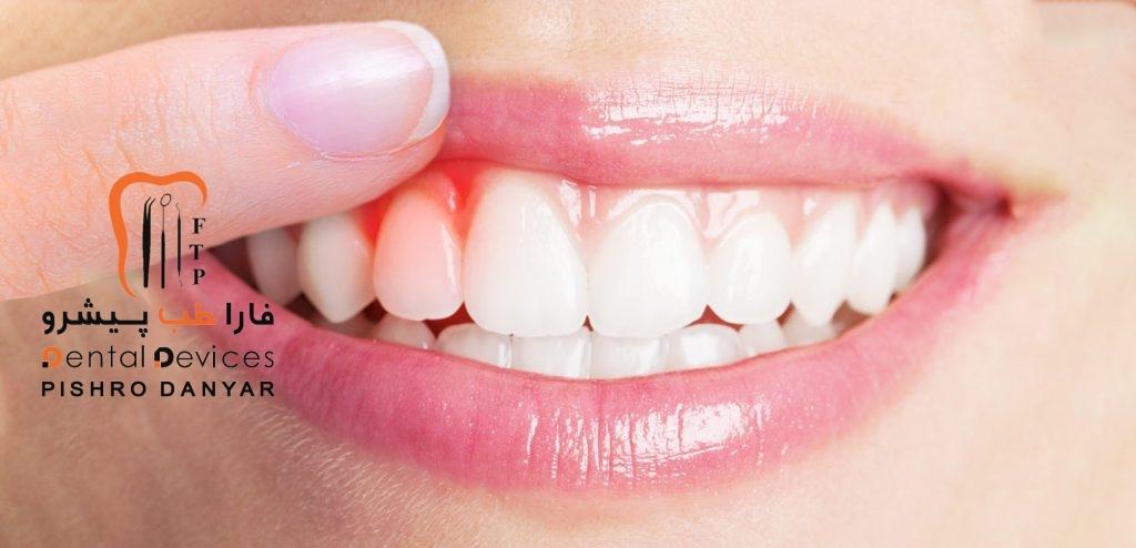 عفونت ها و التهاب های دهانی